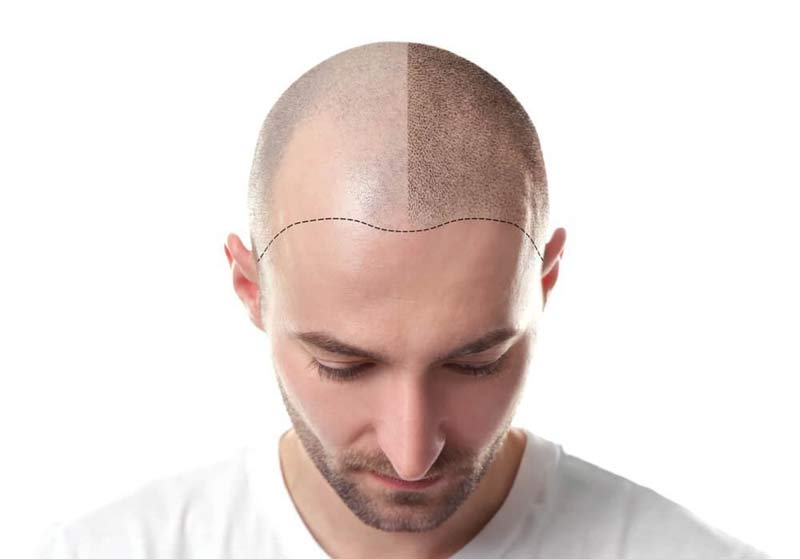 Hair Transplant in Jaipur with Best Results