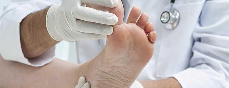 healing diabetic foot ulcers